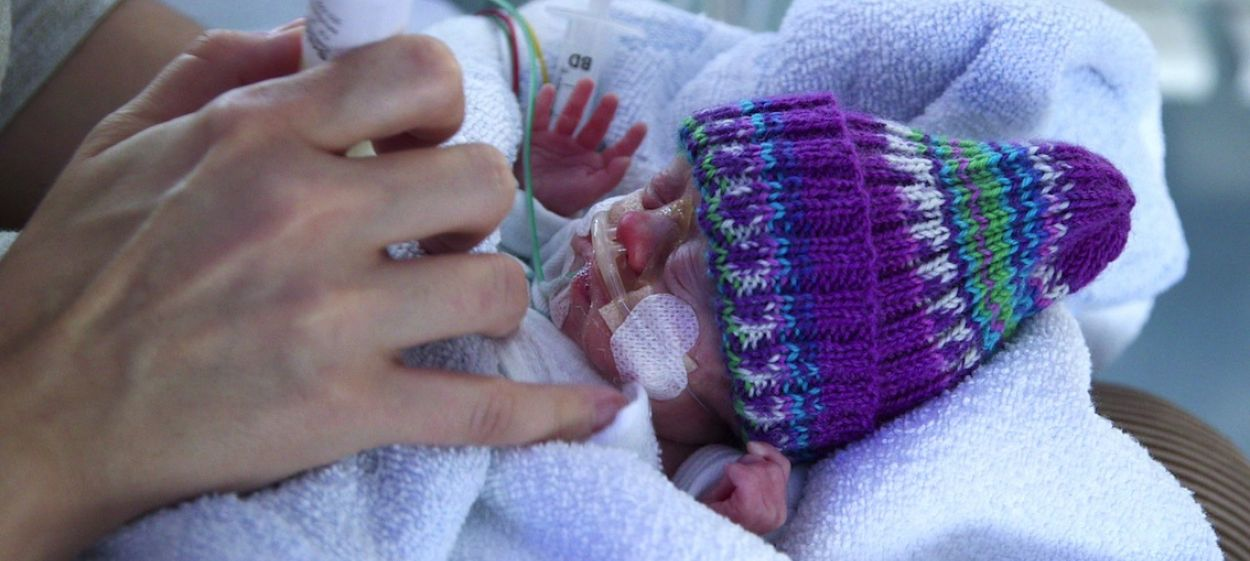 A Handful of Life - Extreme Preemies and Theis Cahnces